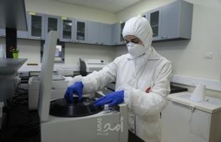 """الصحة الفلسطينية تسجل 18 حالة وفاة و861 إصابة جديدة بفيروس """"كورونا"""""""