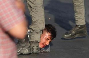 قوات الاحتلال تعتدي على شاب وتعتقله في القدس- صور